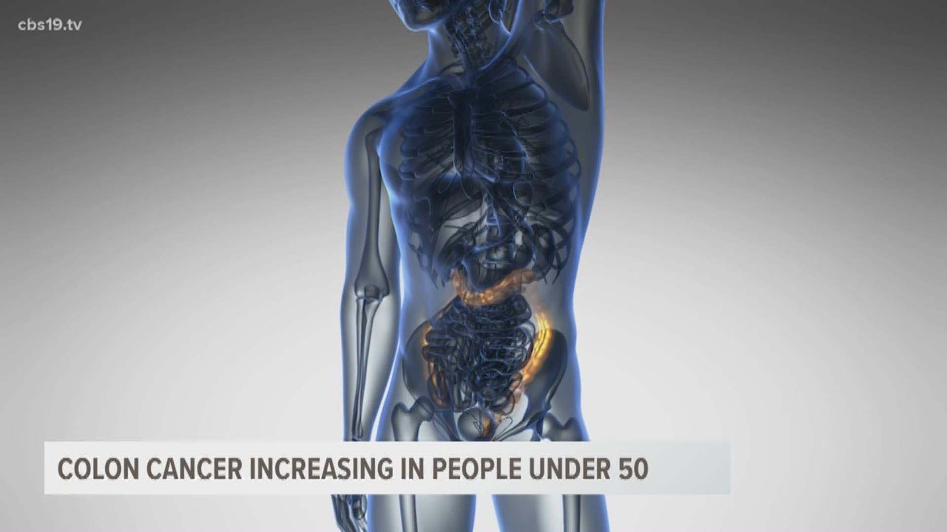 Study Finds Colon Cancer On The Rise Among People Under 50 Cbs19 Tv
