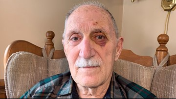 88-year-old man fights off rabid fox with bare hands